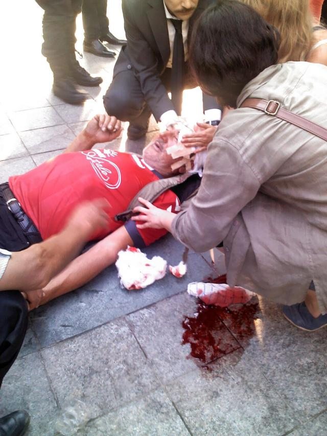 Alleged victim of canister to the head today